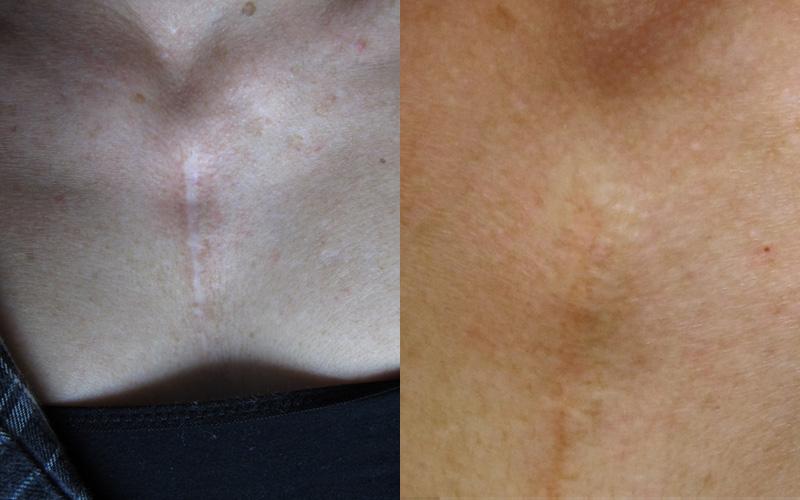 Traitement des cicatrices par dermopigmentation