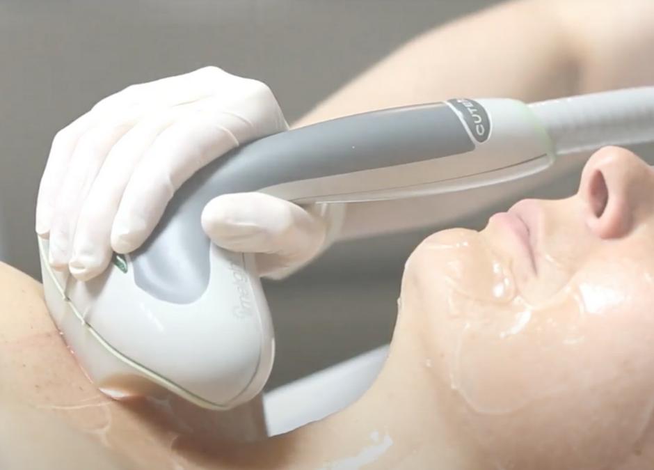 Femme qui reçoit un traitement du décolleté à l'aide d'un laser de dernière technologie